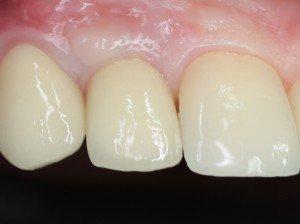 Зуб восстановлен. Зубной выглядит естественно.