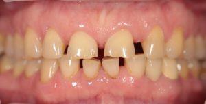 Зубные ряды до восстановления