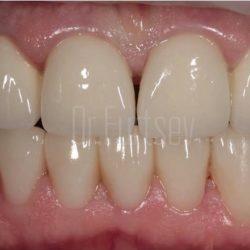 Зубные ряды восстановлены при помощи имплантатов, виниров и коронок.