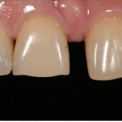 Зубной ряд до восстановления винирами без обточки зубов