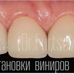 Только что завершена установка виниров без обточки зубов