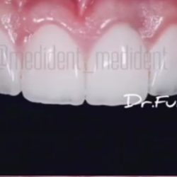 Виниры на зубной ряд