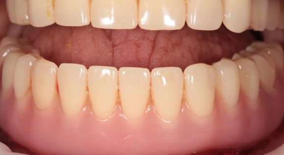Вид полностью восстановленного по протоколу All-on-4 зубного ряда нижней челюсти