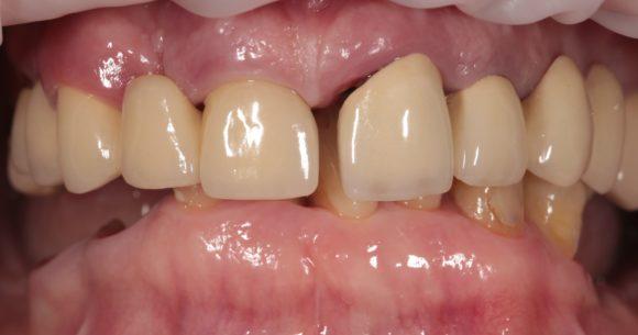Внешний вид верхней челюсти. Существующие ортопедические конструкции потеряли свои эстетические и функциональные характеристики и подлежат замене