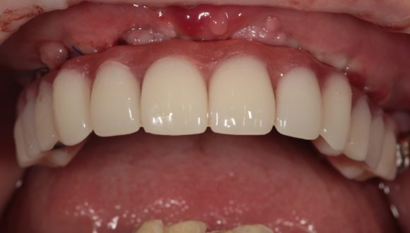 Верхняя челюсть полностью восстановлена по методу